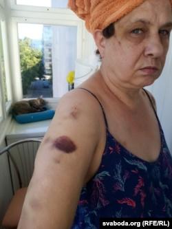 «Я - Маша Лукашенко, а я - Настя Лукашенко». Что известно о девушках из ОМОНа, которые избили 55-летнюю женщину в Гродно