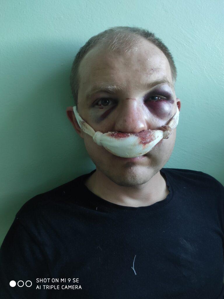 «Только один выбор – бежать». Таксист из Гродно рассказал, почему не пришел в суд и как оказался в Литве